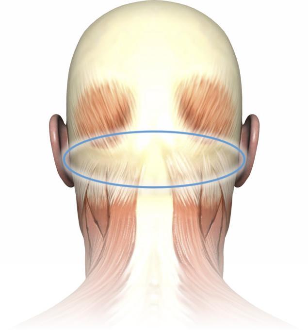 spot-01-suboccipitals-main-xl